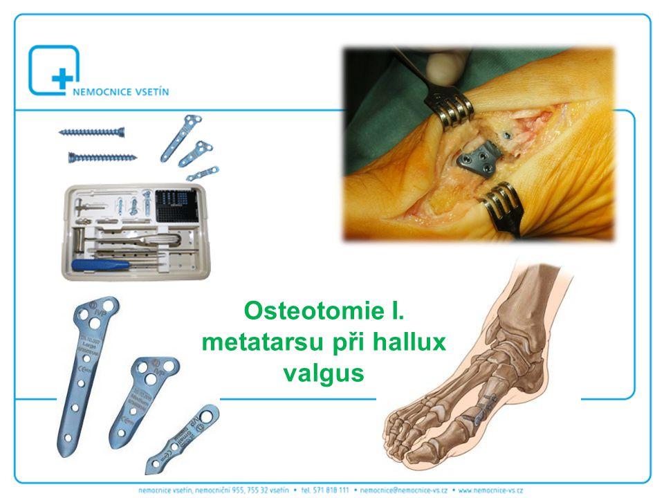 Osteotomie I. metatarsu při hallux valgus