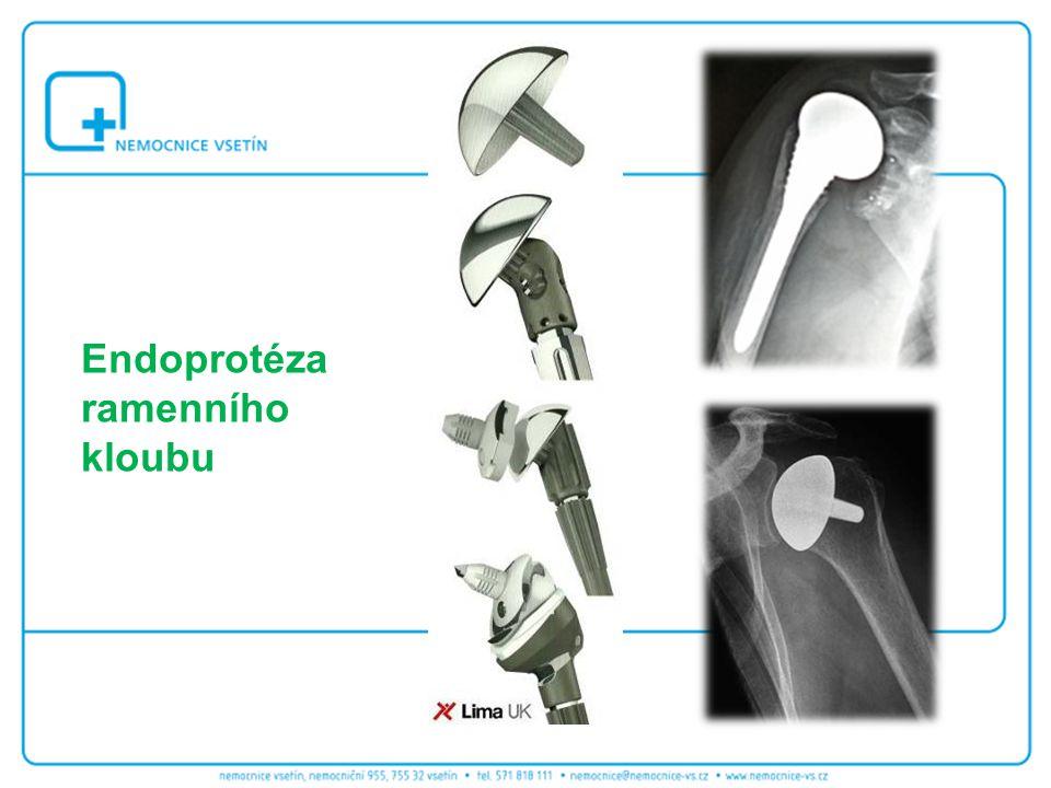 Endoprotéza ramenního kloubu