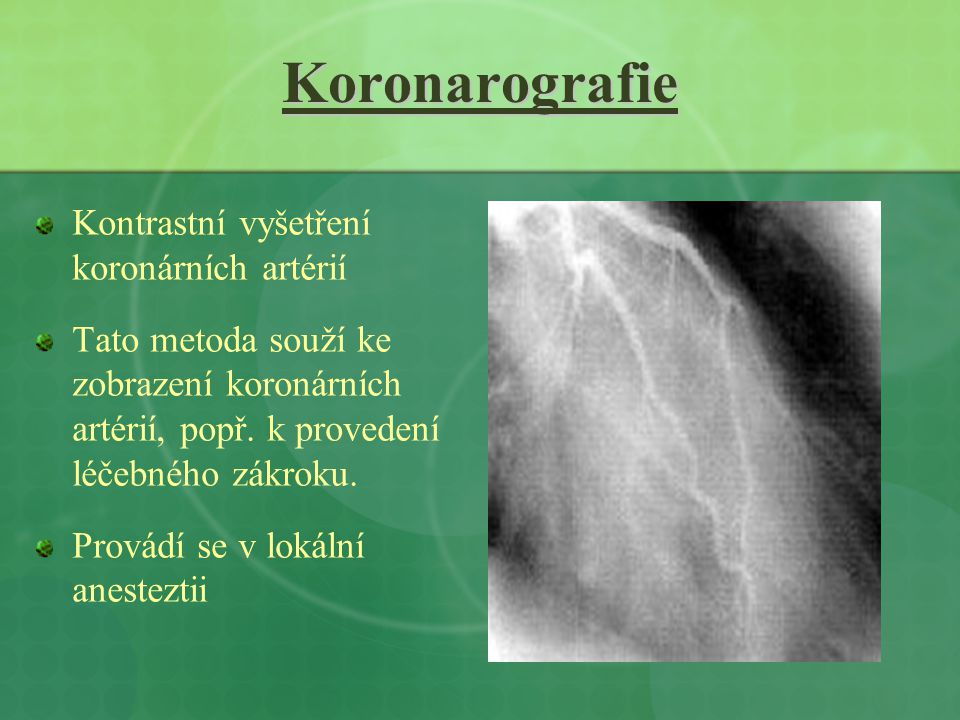 Koronarografie Kontrastní vyšetření koronárních artérií Tato metoda souží ke zobrazení koronárních artérií, popř. k provedení léčebného zákroku. Prová