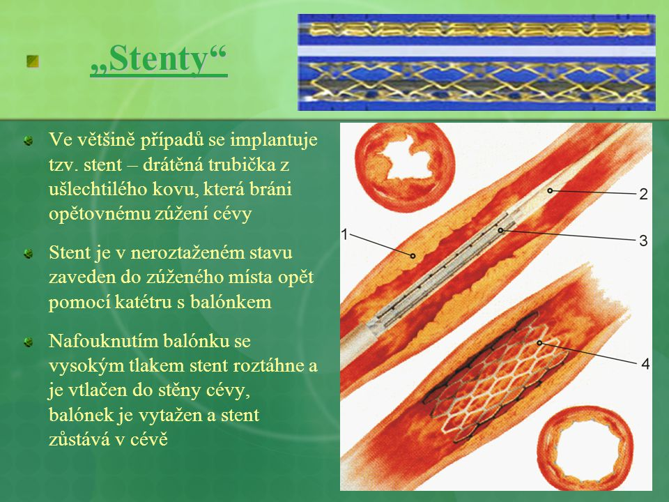 """""""Stenty"""" Ve většině případů se implantuje tzv. stent – drátěná trubička z ušlechtilého kovu, která bráni opětovnému zúžení cévy Stent je v neroztažené"""