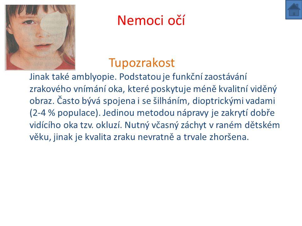 Nemoci očí Tupozrakost Jinak také amblyopie.