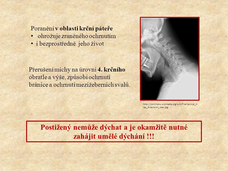 Poranění v oblasti krční páteře ohrožuje zraněného ochrnutím i bezprostředně jeho život Přerušení míchy na úrovni 4. krčního obratle a výše, způsobí o