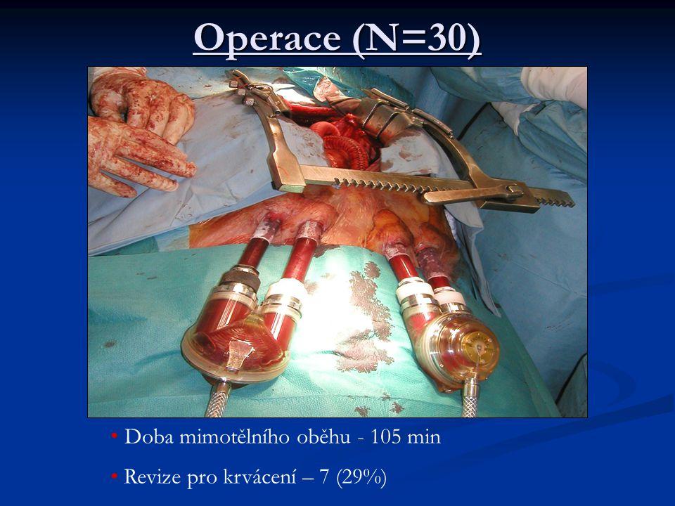 Operace (N=30) Doba mimotělního oběhu - 105 min Revize pro krvácení – 7 (29%)