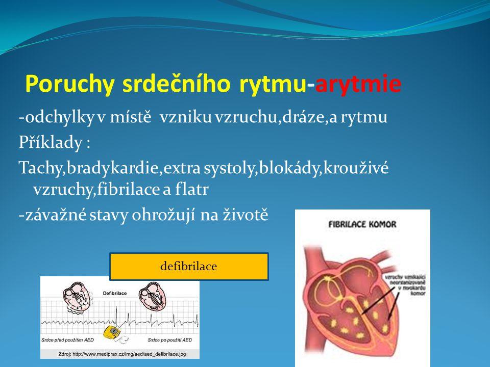Poruchy srdečního rytmu-arytmie -odchylky v místě vzniku vzruchu,dráze,a rytmu Příklady : Tachy,bradykardie,extra systoly,blokády,krouživé vzruchy,fib