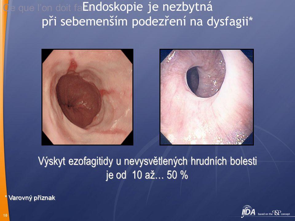 10 Ce que l'on doit faire Výskyt ezofagitidy u nevysvětlených hrudních bolesti je od 10 až… 50 % Výskyt ezofagitidy u nevysvětlených hrudních bolesti je od 10 až… 50 % * Varovný příznak Endoskopie je nezbytná při sebemenším podezření na dysfagii*