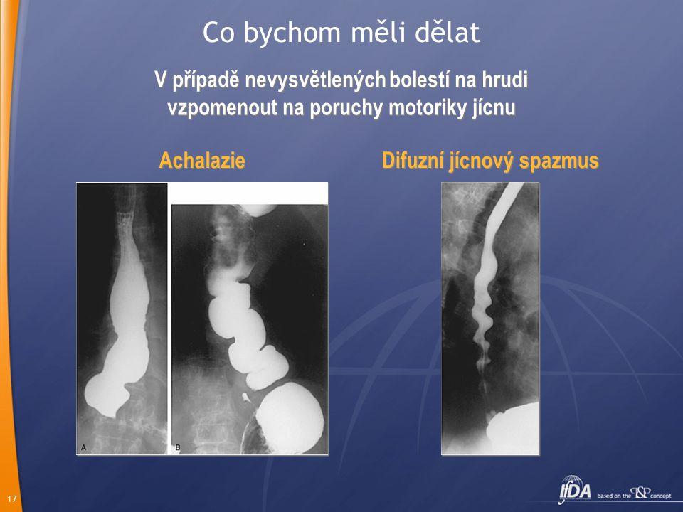 17 V případě nevysvětlených bolestí na hrudi vzpomenout na poruchy motoriky jícnu Difuzní jícnový spazmus Achalazie Co bychom měli dělat