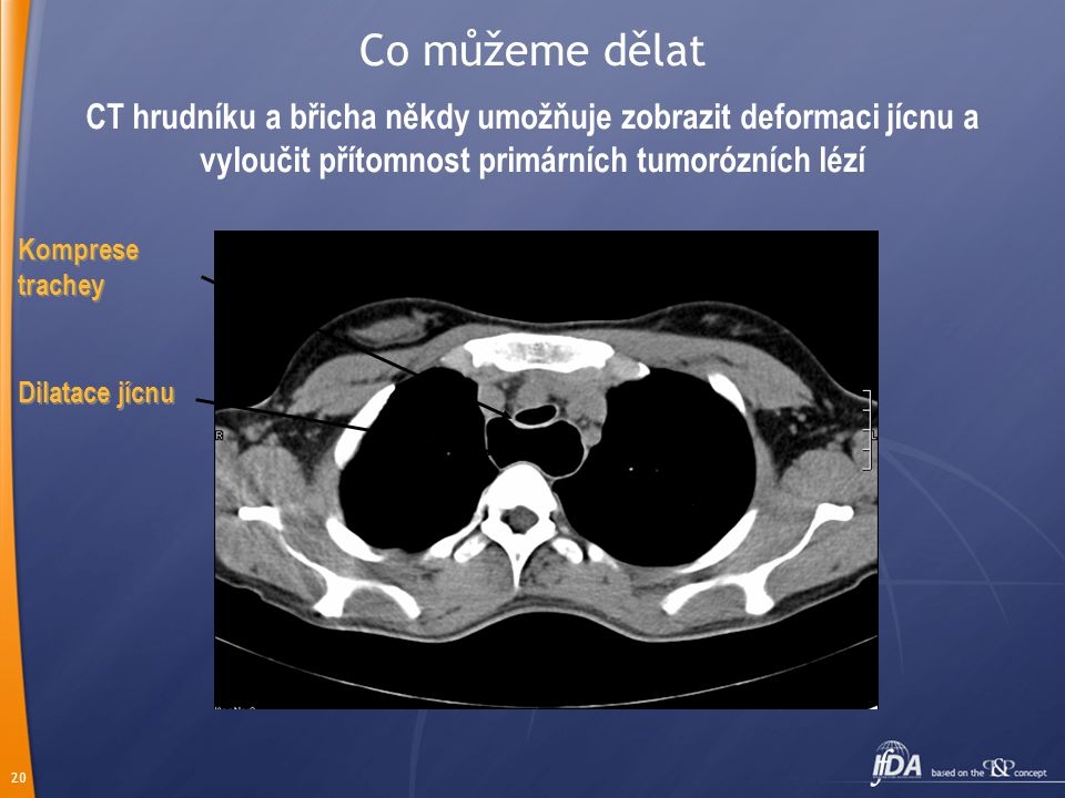 20 CT hrudníku a břicha někdy umožňuje zobrazit deformaci jícnu a vyloučit přítomnost primárních tumorózních lézí Komprese trachey Dilatace jícnu Co m