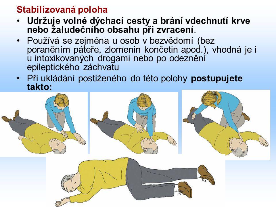Stabilizovaná poloha Udržuje volné dýchací cesty a brání vdechnutí krve nebo žaludečního obsahu při zvracení. Používá se zejména u osob v bezvědomí (b