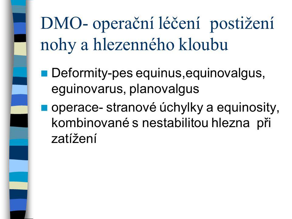 DMO- operační léčení, postižení nohy a hlezenného kloubu Pes equinus- hlavně při zkrácení m.gastrocnemius, indikace k operaci je nemožnost dorsální flexe v hlezenn kl.