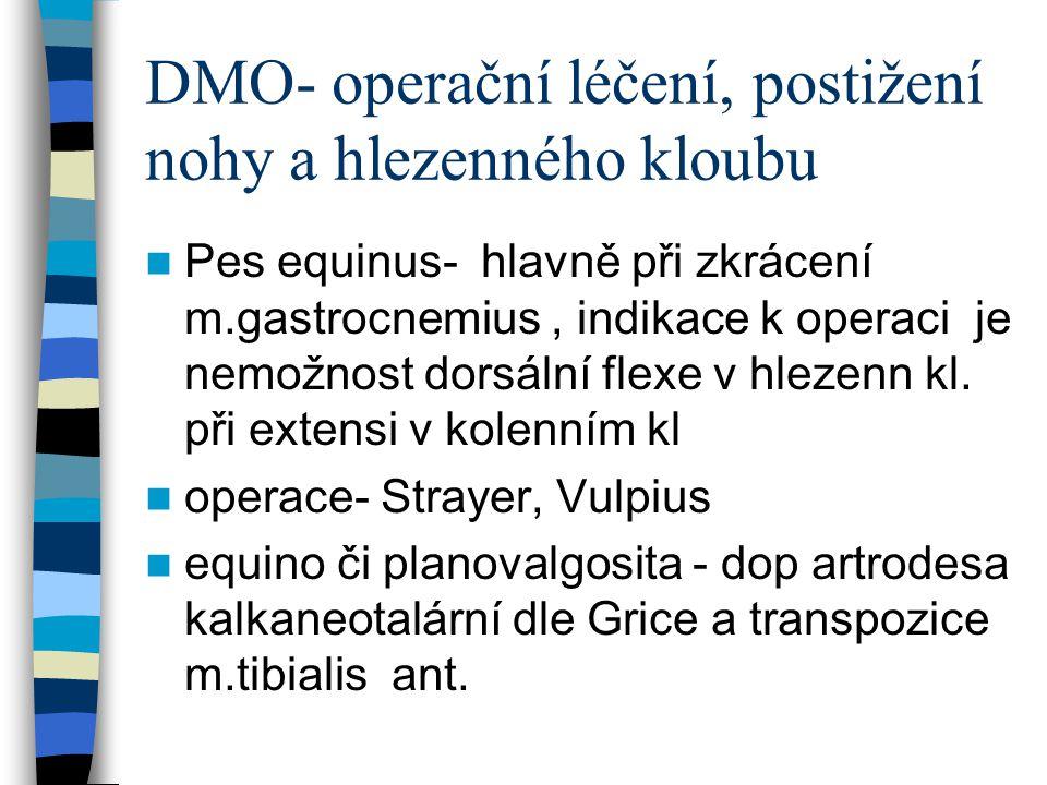 DMO- operační léčení, postižení nohy a hlezenného kloubu Pes equinus- hlavně při zkrácení m.gastrocnemius, indikace k operaci je nemožnost dorsální fl