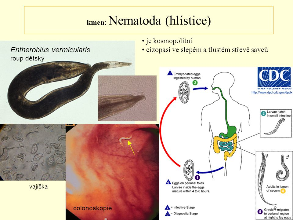 kmen: Nematoda (hlístice) Entherobius vermicularis roup dětský vajíčka colonoskopie je kosmopolitní cizopasí ve slepém a tlustém střevě savců