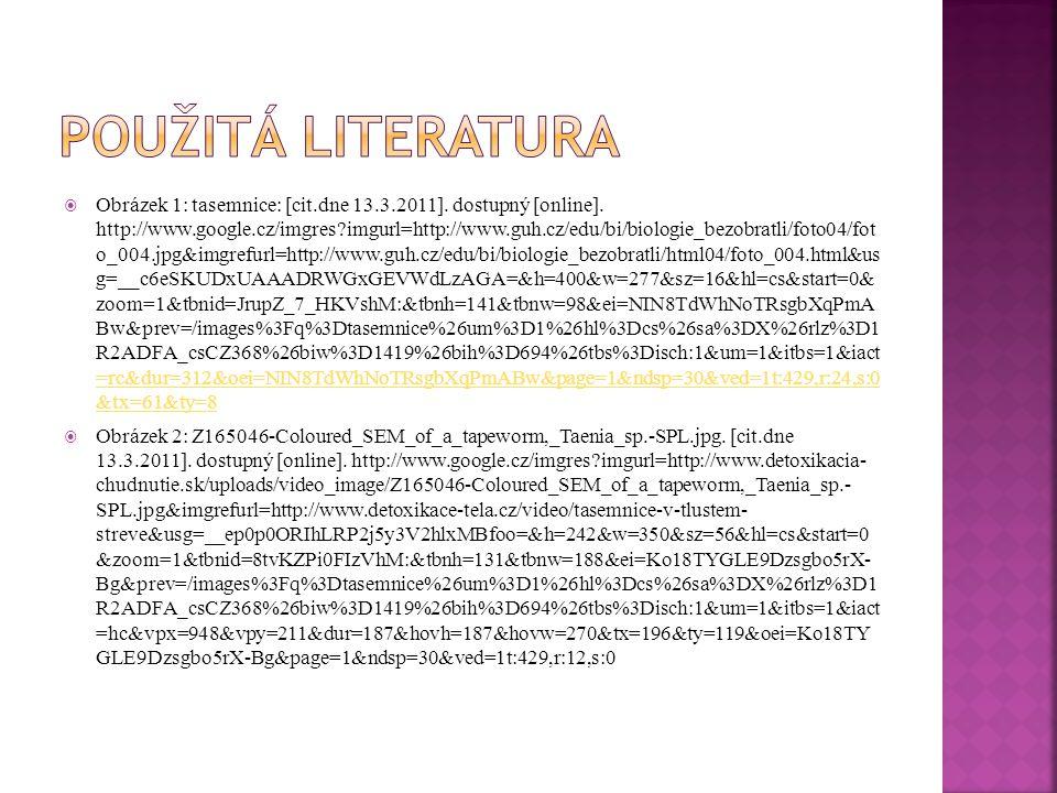 Obrázek 1: tasemnice: [cit.dne 13.3.2011]. dostupný [online]. http://www.google.cz/imgres?imgurl=http://www.guh.cz/edu/bi/biologie_bezobratli/foto04