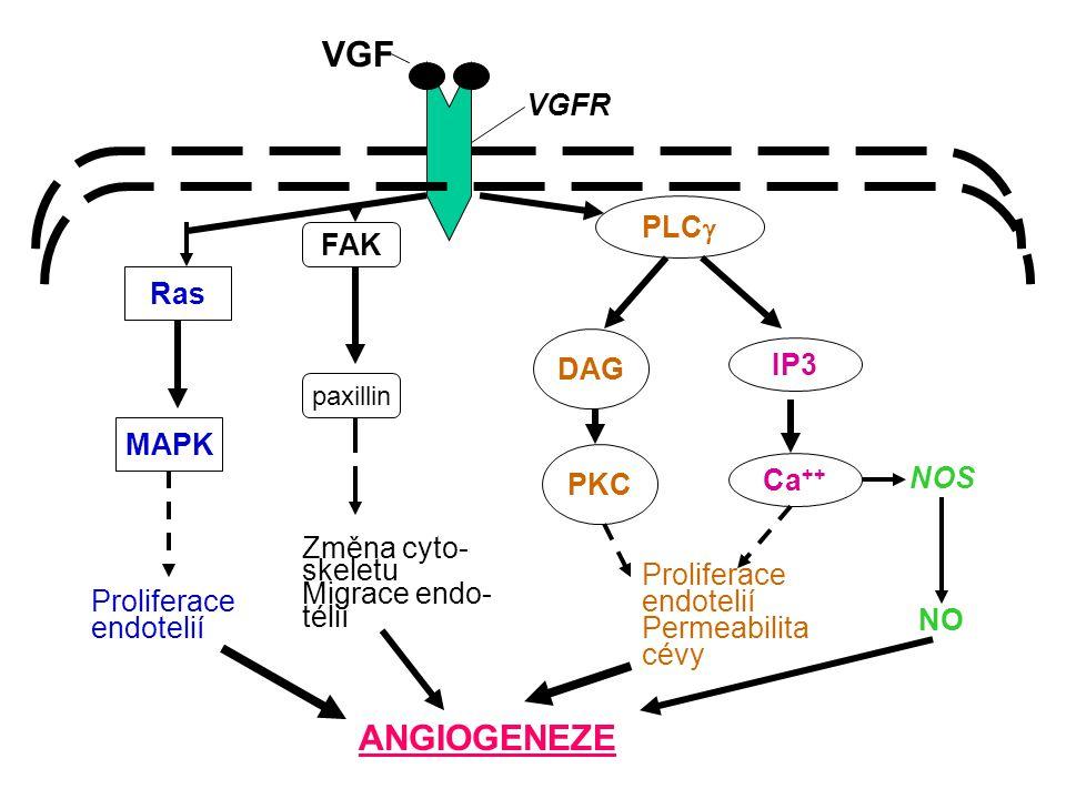 Maligní transformace, angiogeneze Motilita Invazivita Emboly v cirkulaci Adherence k endotelu Extravazace do parenchymu Odpověď na mikroprostředí Proliferace angiogeneze METASTÁZA Metastázy metastáz
