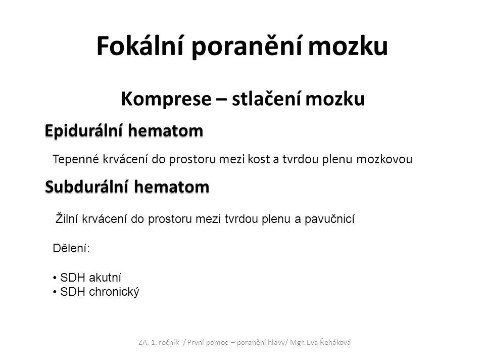 Fokální poranění mozku Komprese – stlačení mozku Epidurální hematom Epidurální hematom ZA, 1. ročník / První pomoc – poranění hlavy/ Mgr. Eva Řeháková