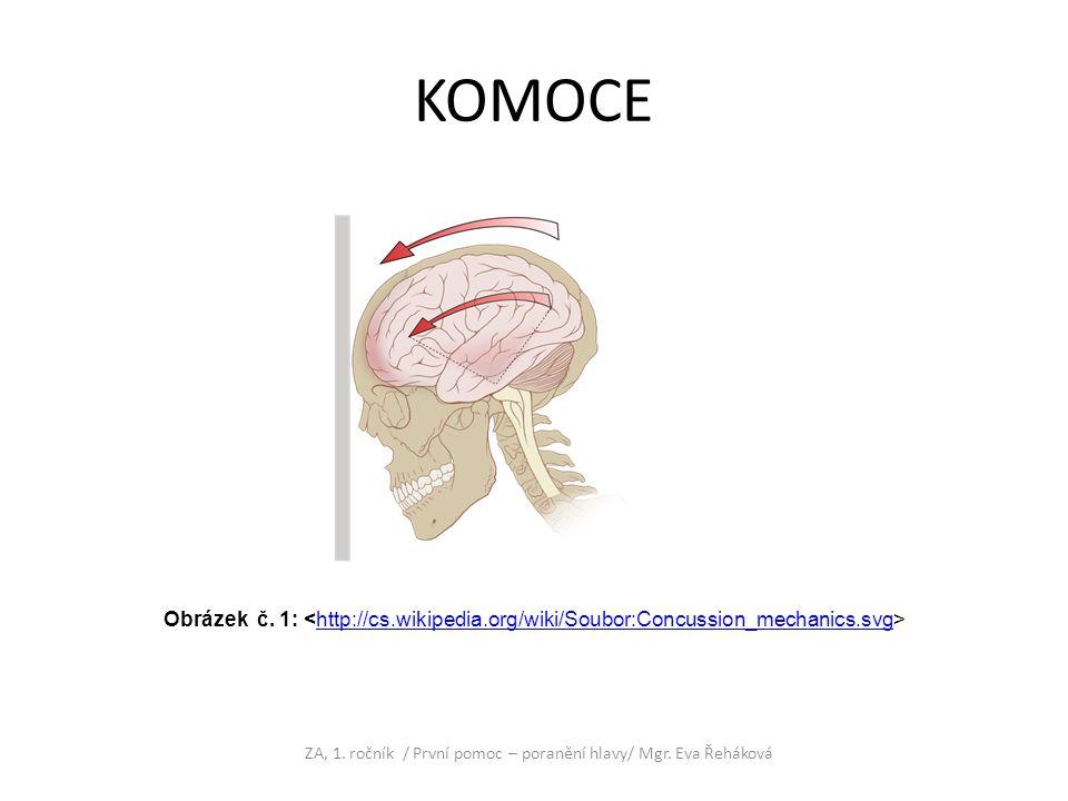 KOMOCE ZA, 1. ročník / První pomoc – poranění hlavy/ Mgr. Eva Řeháková Obrázek č. 1: http://cs.wikipedia.org/wiki/Soubor:Concussion_mechanics.svg