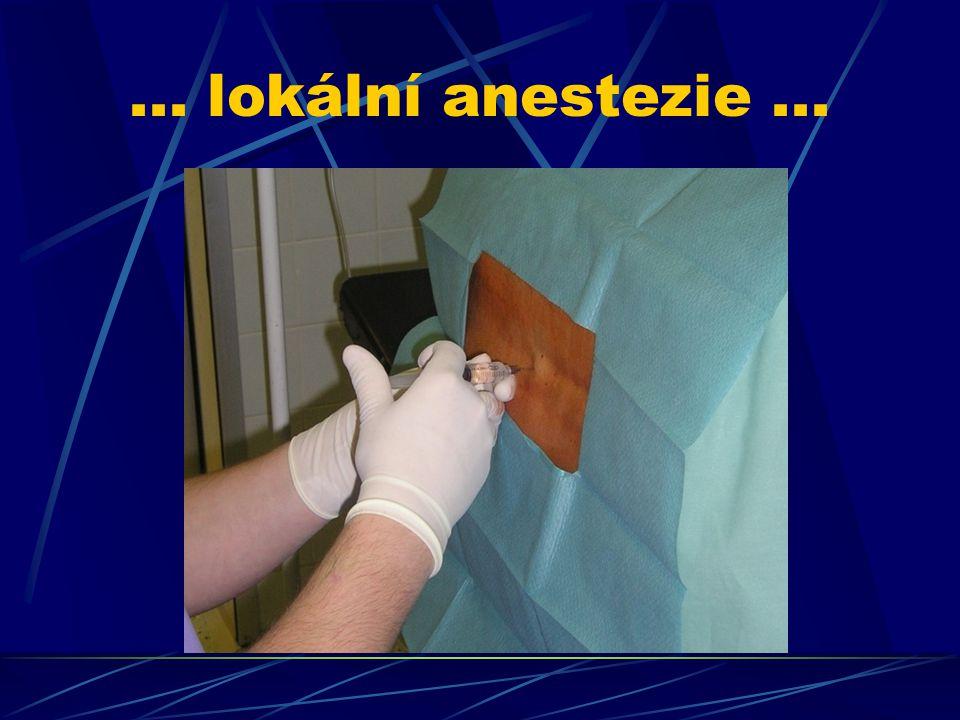 ... lokální anestezie...