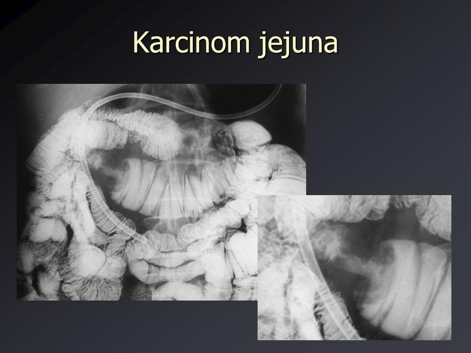 Karcinom jejuna