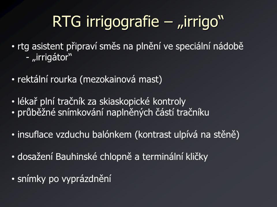 """RTG irrigografie – """"irrigo"""" rtg asistent připraví směs na plnění ve speciální nádobě - """"irrigátor"""" rektální rourka (mezokainová mast) lékař plní tračn"""