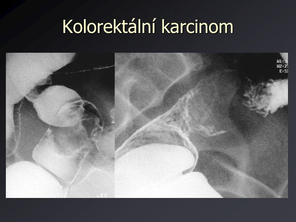 Kolorektální karcinom