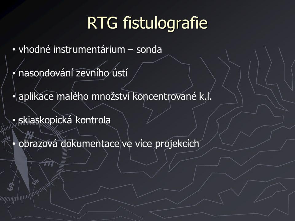 RTG fistulografie vhodné instrumentárium – sonda nasondování zevního ústí aplikace malého množství koncentrované k.l. skiaskopická kontrola obrazová d