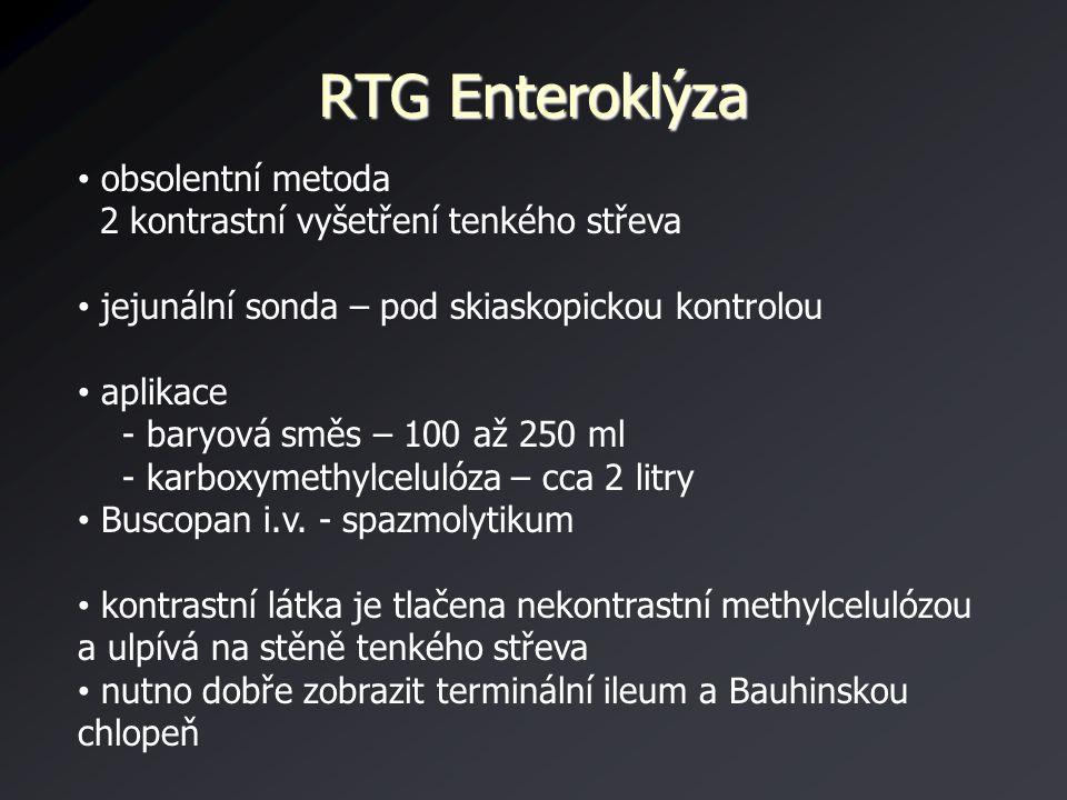RTG Enteroklýza obsolentní metoda 2 kontrastní vyšetření tenkého střeva jejunální sonda – pod skiaskopickou kontrolou aplikace - baryová směs – 100 až