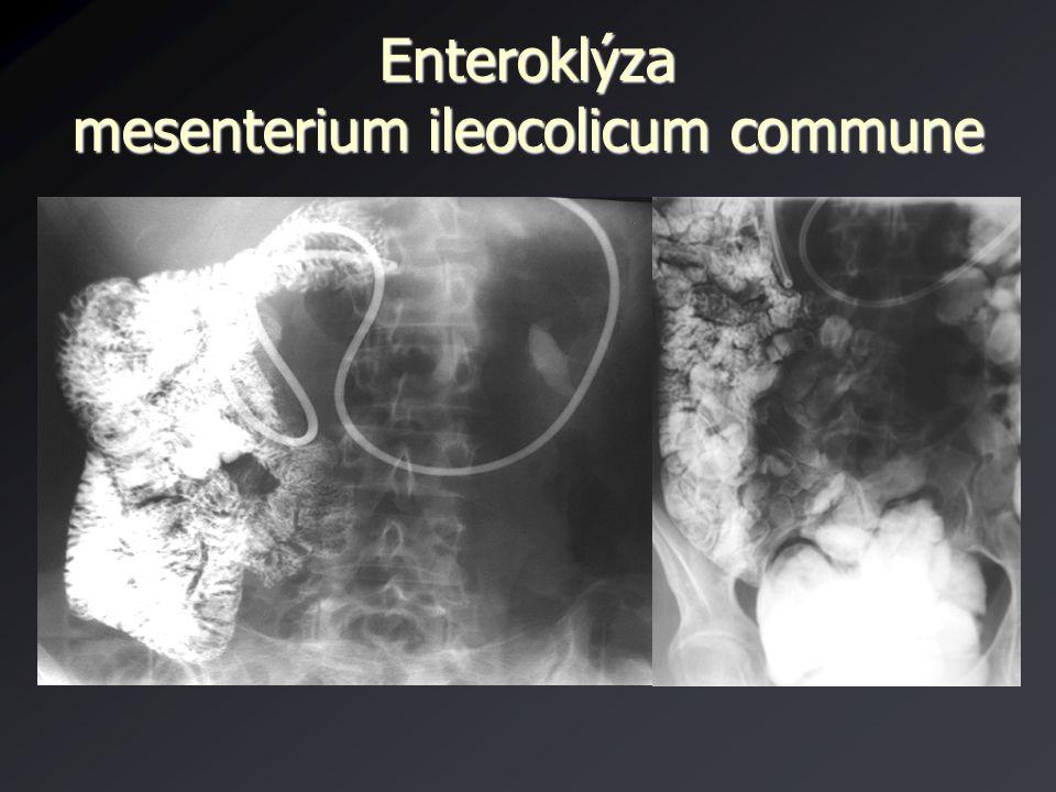 Enteroklýza mesenterium ileocolicum commune