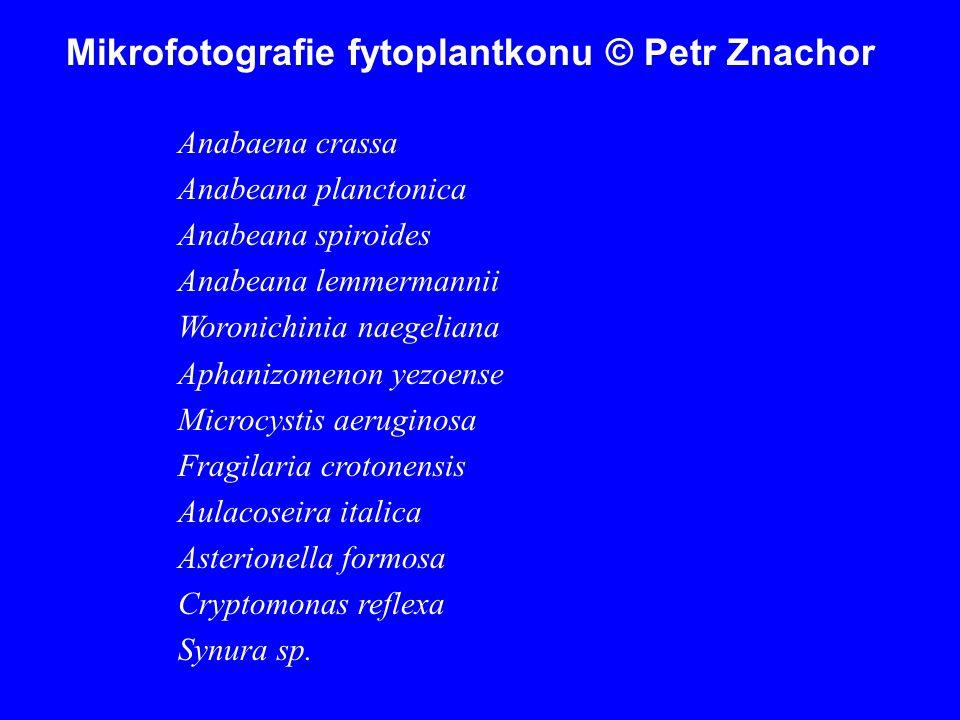 Mikrofotografie fytoplantkonu © Petr Znachor Anabaena crassa Anabeana planctonica Anabeana spiroides Anabeana lemmermannii Woronichinia naegeliana Aph