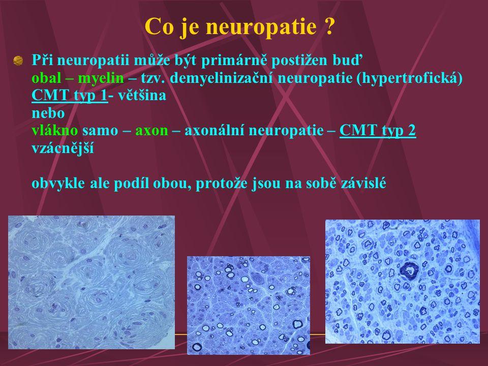Co je neuropatie ? Při neuropatii může být primárně postižen buď obal – myelin – tzv. demyelinizační neuropatie (hypertrofická) CMT typ 1- většina neb