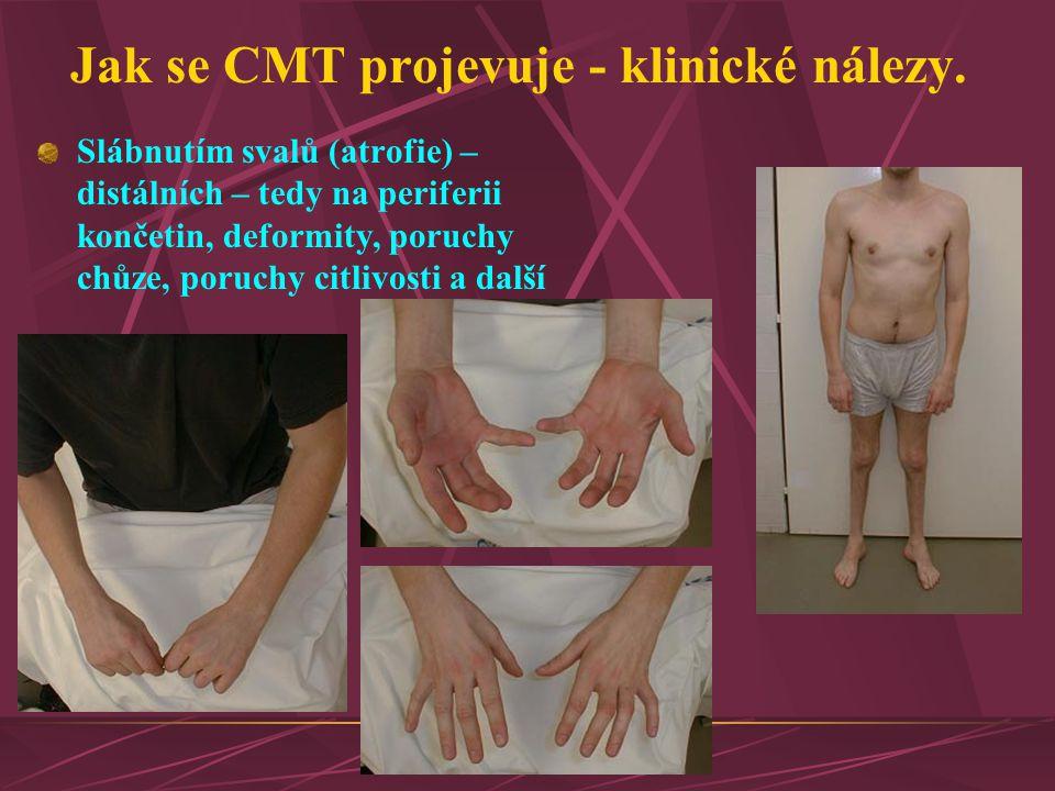 Jak se CMT projevuje - klinické nálezy. Slábnutím svalů (atrofie) – distálních – tedy na periferii končetin, deformity, poruchy chůze, poruchy citlivo