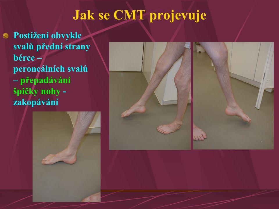 Jak se CMT projevuje Postižení obvykle svalů přední strany bérce – peroneálních svalů – přepadávání špičky nohy - zakopávání