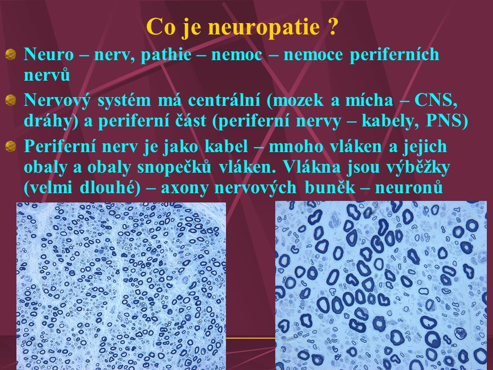 Co je neuropatie .