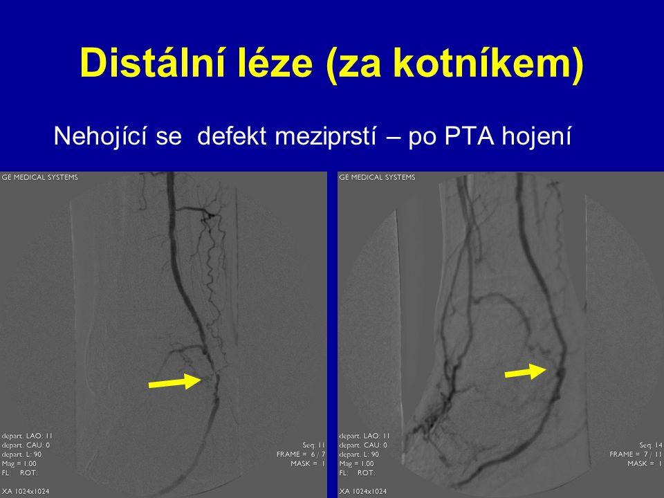 Distální léze (za kotníkem) Nehojící se defekt meziprstí – po PTA hojení