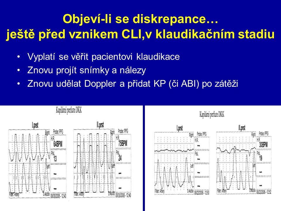 Objeví-li se diskrepance… ještě před vznikem CLI,v klaudikačním stadiu Vyplatí se věřit pacientovi klaudikace Znovu projít snímky a nálezy Znovu uděla