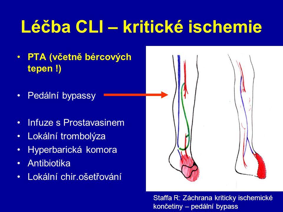 Léčba CLI – kritické ischemie PTA (včetně bércových tepen !) Pedální bypassy Infuze s Prostavasinem Lokální trombolýza Hyperbarická komora Antibiotika