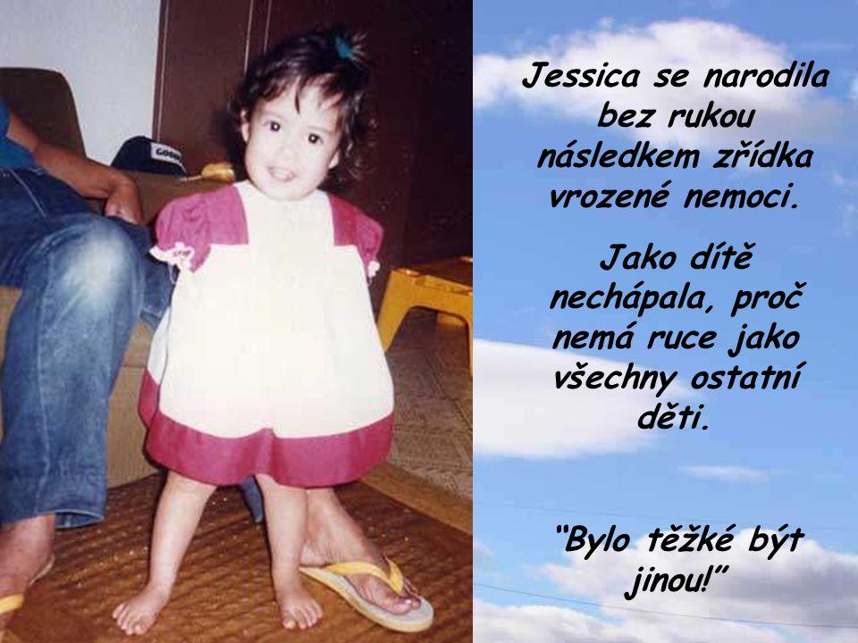 Jessica se narodila bez rukou následkem zřídka vrozené nemoci.