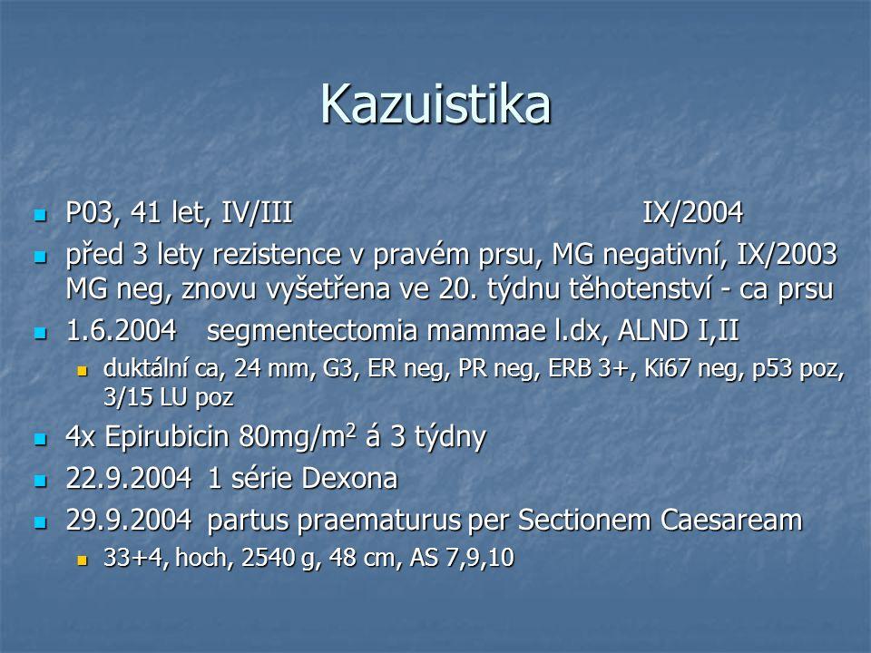 Kazuistika P03, 41 let, IV/IIIIX/2004 P03, 41 let, IV/IIIIX/2004 před 3 lety rezistence v pravém prsu, MG negativní, IX/2003 MG neg, znovu vyšetřena v