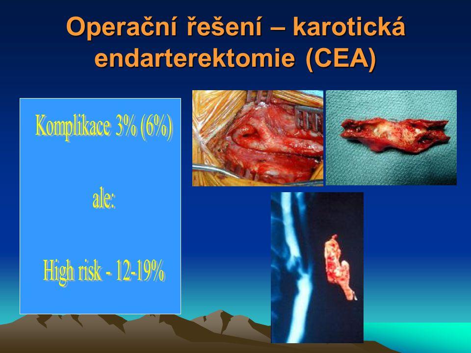 """EVA 3S – debakl stentů Smrt+CMP CEA stent 30 dní 3,9% 9,6% 6 měsíců 6,1% 11,7% Studie předčasně ukončena se závěrem: """"CEA je bezpečnější Neurochir.dny Plzeň,XI/06"""
