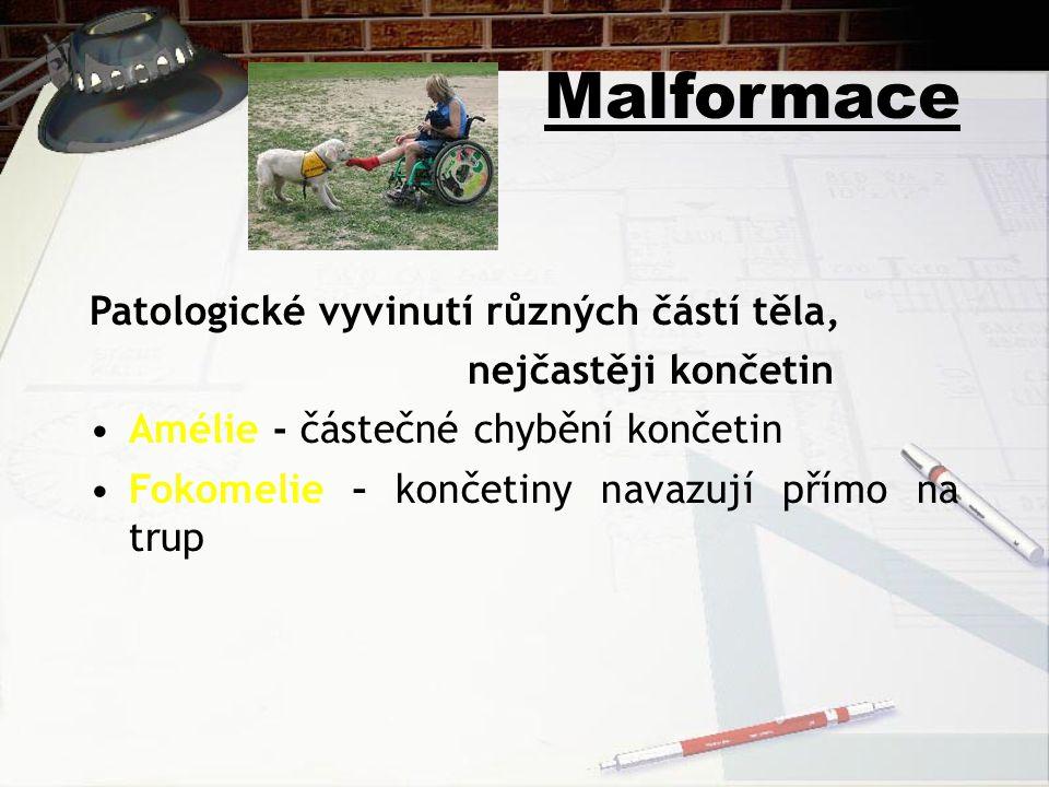 Malformace Patologické vyvinutí různých částí těla, nejčastěji končetin Amélie - částečné chybění končetin Fokomelie – končetiny navazují přímo na tru