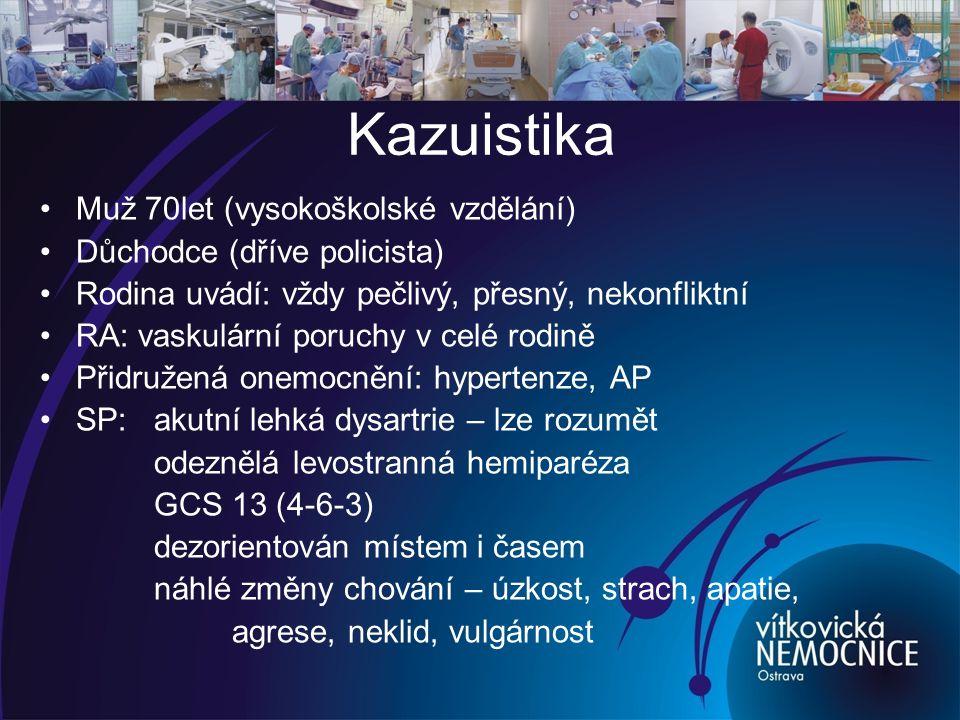 Po přijetí na JIP CT mozku: bez akutních ischemických změn Dopplerografie: lehká stenóza karotid Odběry (biochemie, KO, Quick, APTT…) Fyziologické funkce:SpO 2 94% TF 128´ TK 180/95 - Nízký neurologický deficit (NIHSS 2) - systémová trombolýza neindikována - DG: I 63.5 Mozkový infarkt způsobený neurčenou okluzí nebo stenózou mozkových tepen