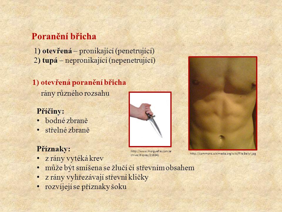 Poranění břicha 1) otevřená – pronikající (penetrující) 2) tupá – nepronikající (nepenetrující) 1) otevřená poranění břicha Příčiny: bodné zbraně střelné zbraně Příznaky: z rány vytéká krev může být smíšena se žlučí či střevním obsahem z rány vyhřezávají střevní kličky rozvíjejí se příznaky šoku rány různého rozsahu http://commons.wikimedia.org/wiki/File:Belly!.jpg http://www.morguefile.com/ar chive/display/216541