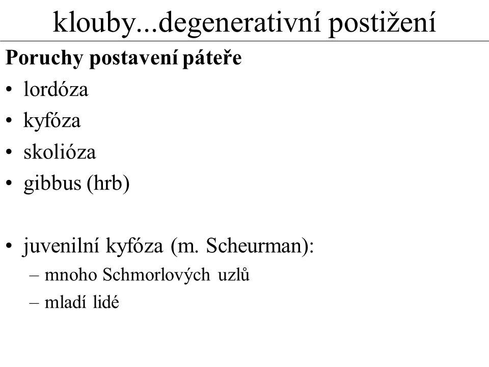 klouby...degenerativní postižení Poruchy postavení páteře lordóza kyfóza skolióza gibbus (hrb) juvenilní kyfóza (m. Scheurman): –mnoho Schmorlových uz