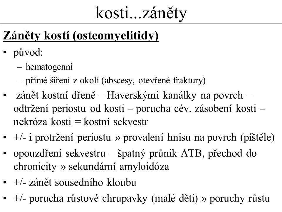 kosti...záněty Záněty kostí (osteomyelitidy) původ: –hematogenní –přímé šíření z okolí (abscesy, otevřené fraktury) zánět kostní dřeně – Haverskými ka