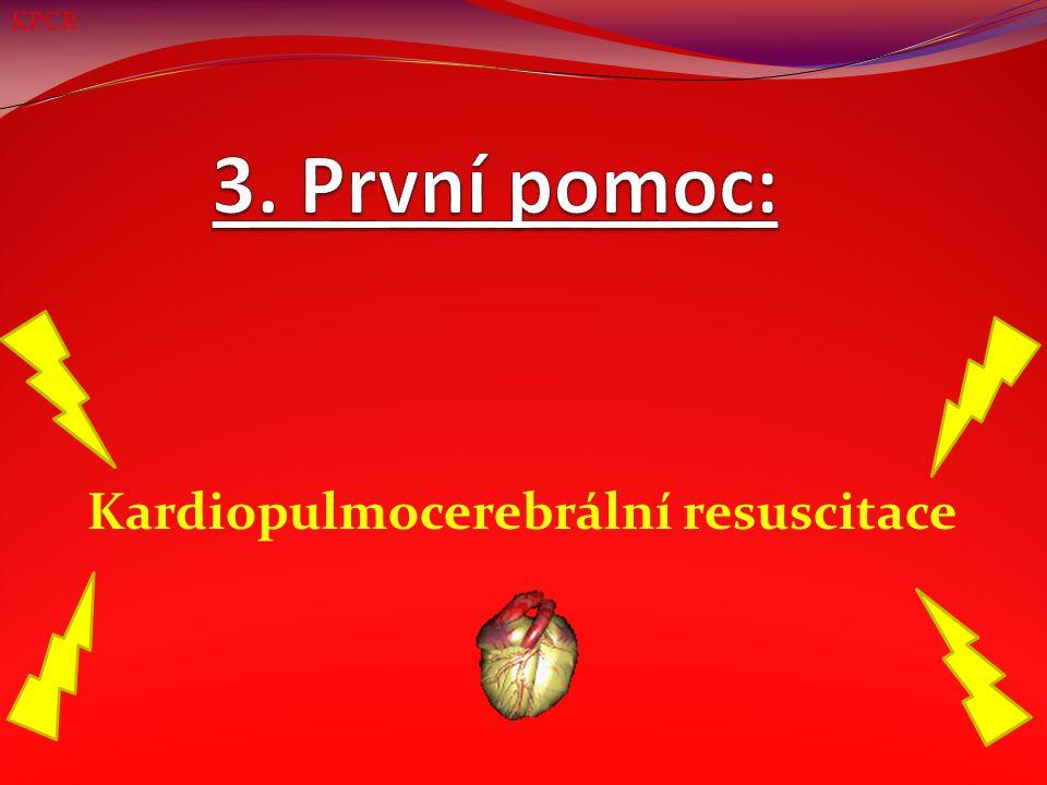 Známky srdeční zástavy Žádejte případné svědky o pomoc Kontrola velkých kostí Přetočení na záda Kontrola dutiny ústní Záklon hlavy Kontrola ŽF Volání ZZS 30 stlačení (uprostřed hrudníku, 4 – 5 cm hluboko) 2 hluboké vdechy (umělé dýchání) Celková prohlídka Stabilizovaná poloha KPCR