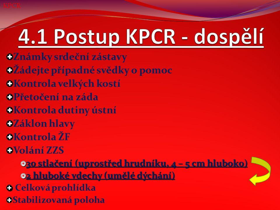 Známky srdeční zástavy Žádejte případné svědky o pomoc Kontrola velkých kostí Přetočení na záda Kontrola dutiny ústní Záklon hlavy Kontrola ŽF 5 rychlých úvodních vdechů (dále KPCR cca 1 minutu) Volání ZZS (po 1 minutě KPCR) 2 hluboké vdechy (umělé dýchání) 30 stlačení (uprostřed hrudníku, 1/3 hrudníku hluboko) Celková prohlídka Stabilizovaná poloha