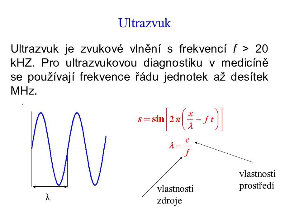 Ultrazvuk Ultrazvuk je zvukové vlnění s frekvencí f > 20 kHZ.