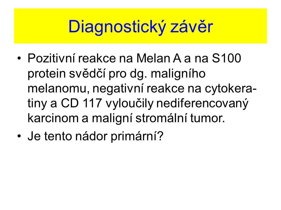 Diagnostický závěr Pozitivní reakce na Melan A a na S100 protein svědčí pro dg. maligního melanomu, negativní reakce na cytokera- tiny a CD 117 vylouč
