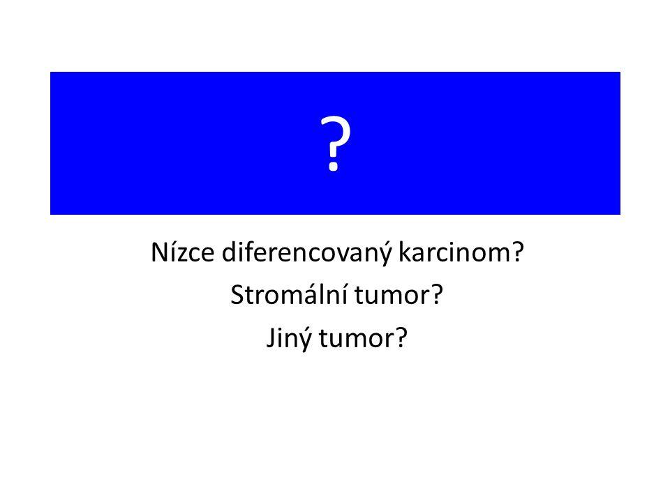 ? Nízce diferencovaný karcinom? Stromální tumor? Jiný tumor?