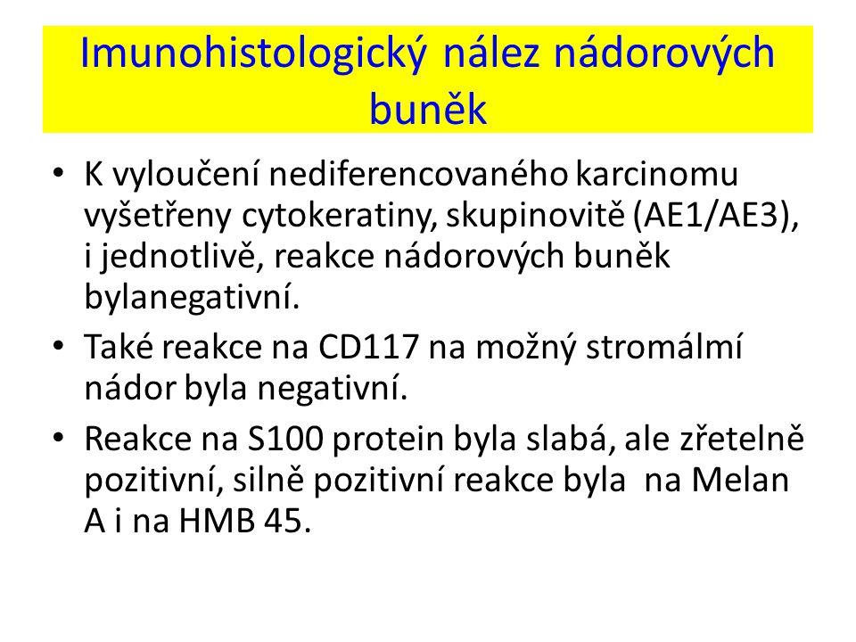 Imunohistologický nález nádorových buněk K vyloučení nediferencovaného karcinomu vyšetřeny cytokeratiny, skupinovitě (AE1/AE3), i jednotlivě, reakce nádorových buněk bylanegativní.