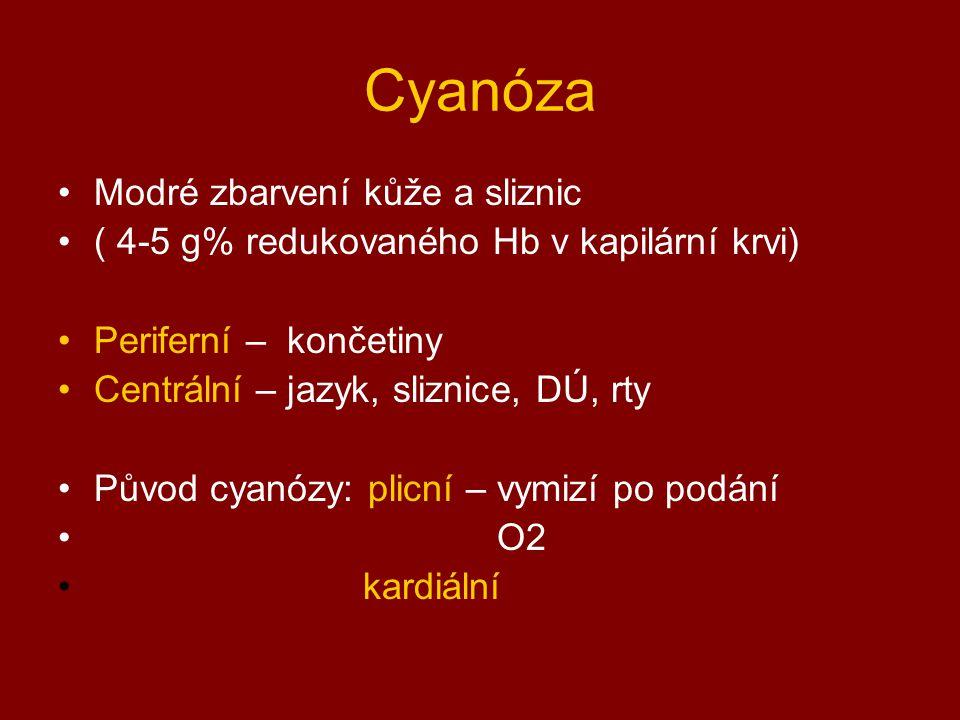 Cyanóza Modré zbarvení kůže a sliznic ( 4-5 g% redukovaného Hb v kapilární krvi) Periferní – končetiny Centrální – jazyk, sliznice, DÚ, rty Původ cyan