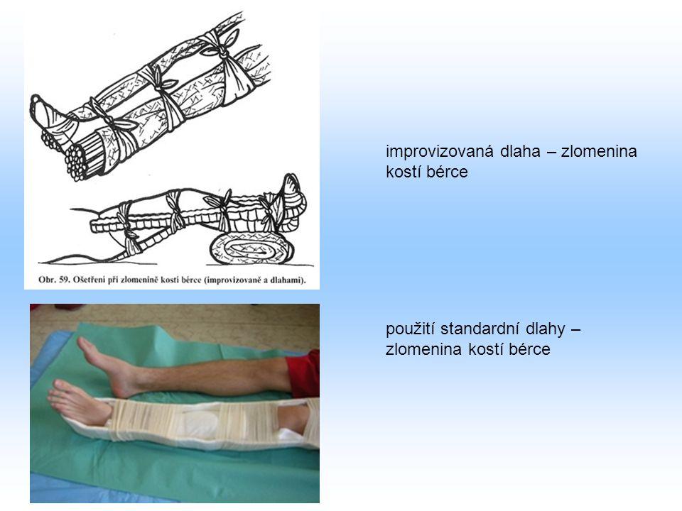 improvizovaná dlaha – zlomenina kostí bérce použití standardní dlahy – zlomenina kostí bérce